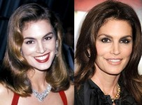 Cindy Crawford plastic surgery before and after botox, facelift photos