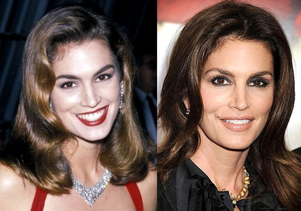 Cindy Crawford Plastic Surgery Before And After Botox