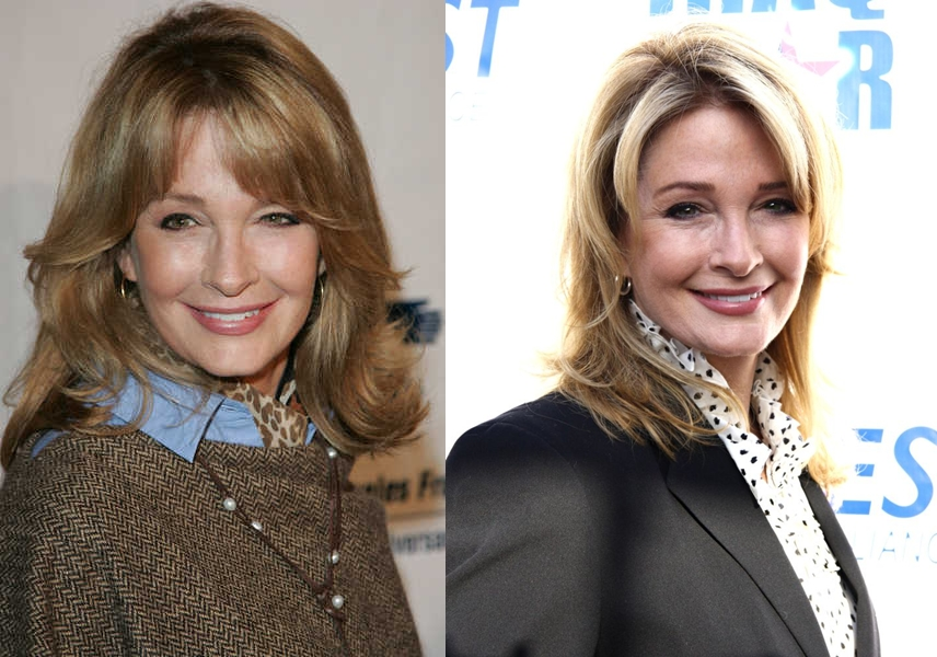 Deidre Hall plastic surgery before and after face photos, pictures