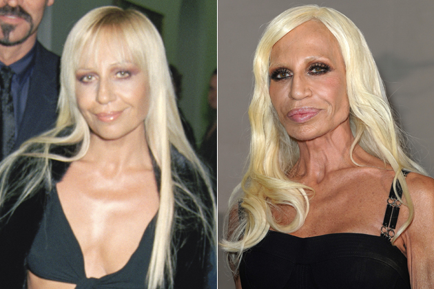 Donatella Versace plastic surgery gone wrong before and after pictures