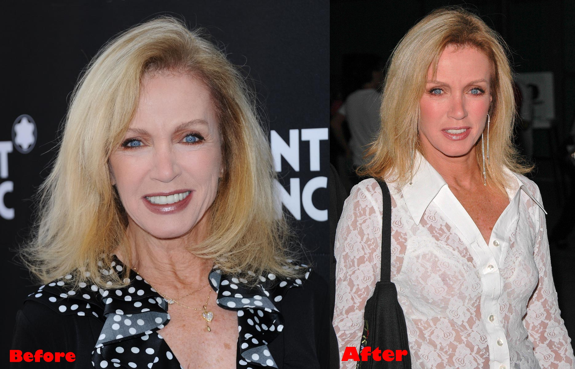 Donna Mills plastic surgery before and after photos, pictures