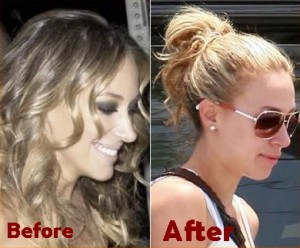 Celebrity Nose Jobs Before And After Pictures Rhinoplasty ...
