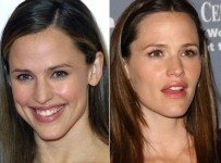 Jennifer Garner Plastic Surgery Before And After Photos 1