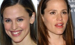 Jennifer Garner Plastic Surgery Before And After Photos 1