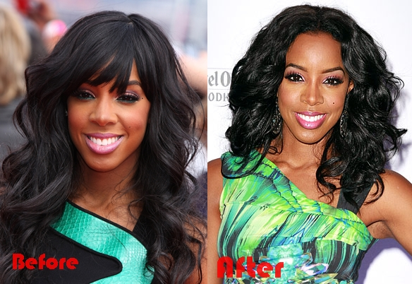 Kelly Rowland nose job before and after photos, pictures 2