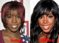 Kelly Rowland nose job before and after photos, pictures