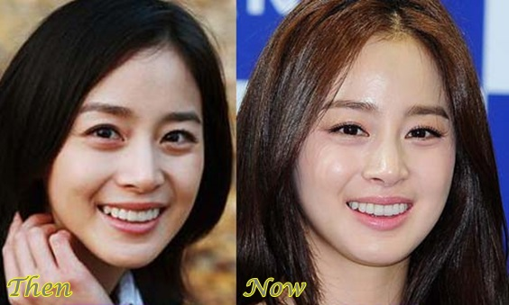 Kim Tae hee plastic surgery before and after face photos 1