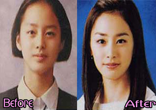 Kim Tae hee plastic surgery before and after face photos 2