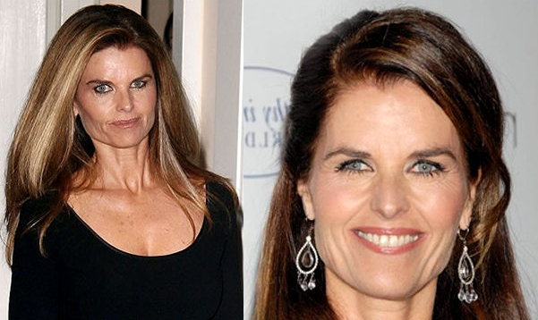 Maria Shriver plastic Surgery Before and After Face Photos 1