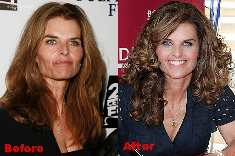 Maria Shriver plastic Surgery Before and After Face Photos