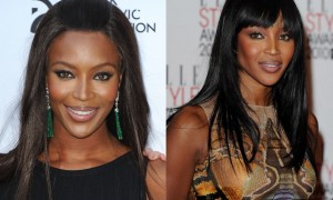 Naomi Campbell Nose Job Before And After Rhinoplasty Photos 1