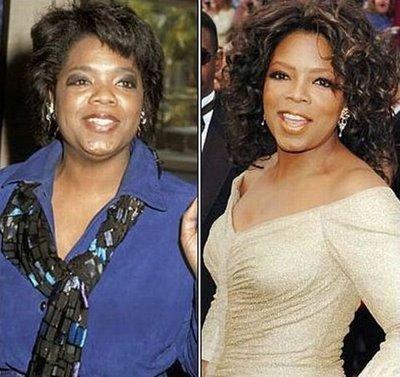 Oprah Winfrey nose job surgery before and after photos 1