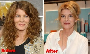 Billie Piper Weight Loss Before And After Jocelyn Wildenstein Fa...