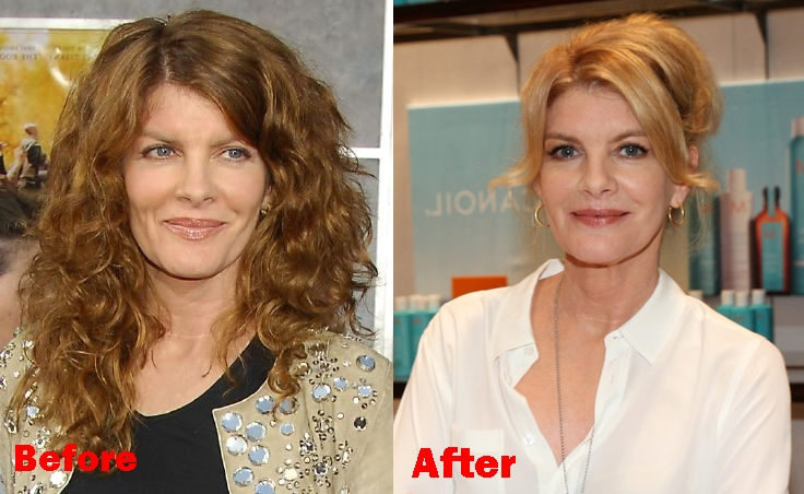 Rene Russo plastic surgery before and after face photos 1