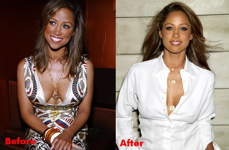Stacey Dash Nose Job Surgery Before And After Photos 2