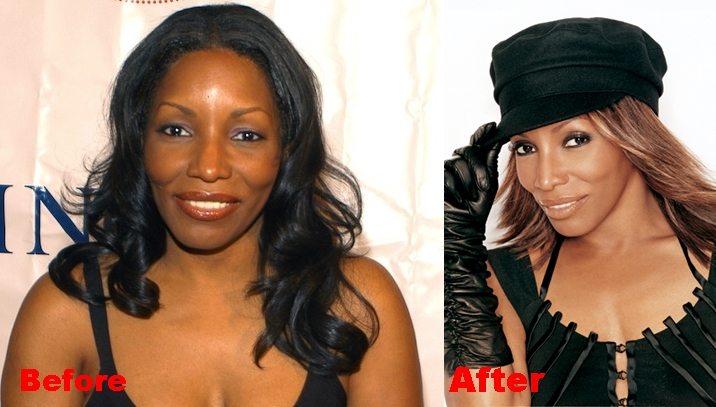 Stephanie Mills plastic Surgery Before and After Nose Job Photos 1