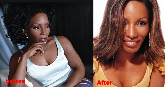 Stephanie Mills plastic Surgery Before and After Nose Job Photos