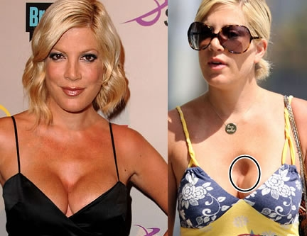 Tori Spelling plastic surgery gone wrong before and after pictures 1