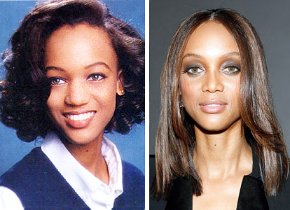 Tyra Banks nose job plastic surgery before and after photos 1