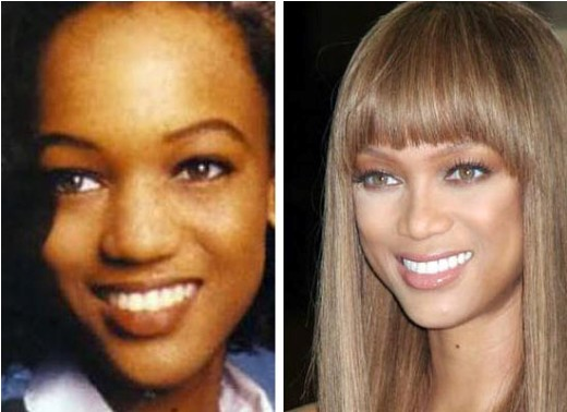 African American Rhinoplasty Before And After Pictures ...