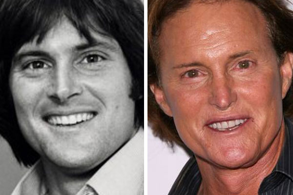 Bruce Jenner plastic surgery before and after photos 2
