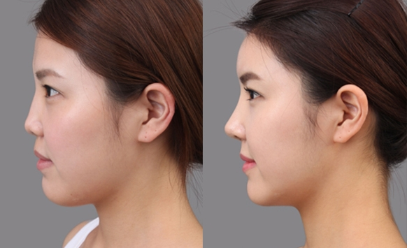 Ethnic nose job before and after photos 5