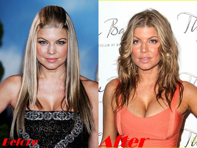 Fergie Breast implants surgery before and after boob job photos 2