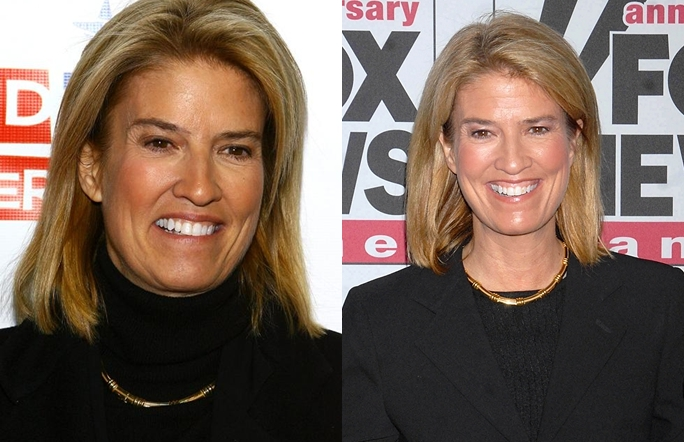 Greta Van Susteren Plastic Surgery Before And After Photos, Pictures 2