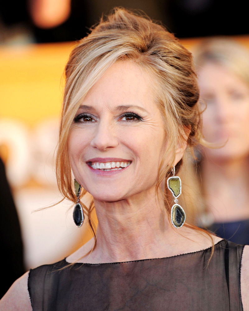 Holly Hunter plastic surgery before and after facelift, botox photos