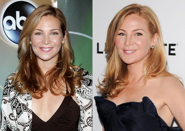 Jennifer Westfeldt plastic Surgery Face Before and After Photos 1