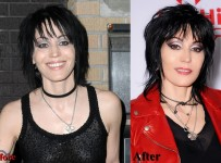 Joan Jett plastic surgery before and after photos face pictures