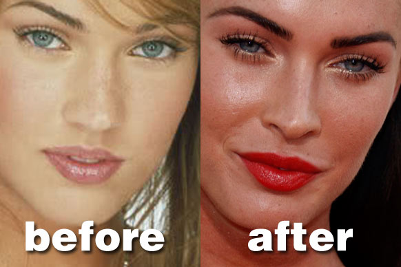 Katie Price Nose Job Before And After Pictures 2