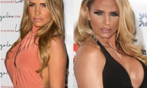 Katie Price Nose Job Before And After Pictures