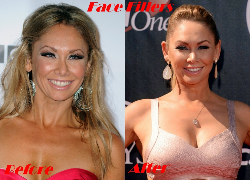 Kym Johnson plastic surgery before and after face photos 1