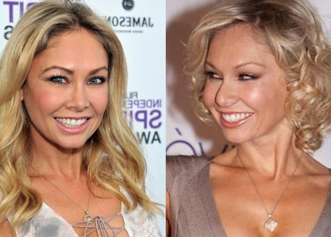 Kym Johnson plastic surgery before and after face photos 2