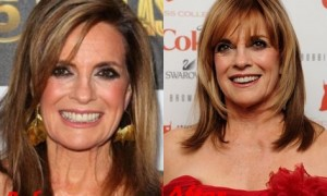 Linda Gray plastic surgery before and after face photos 1