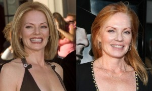 Marg Helgenberger plastic surgery before and after facelift, botox photos 1