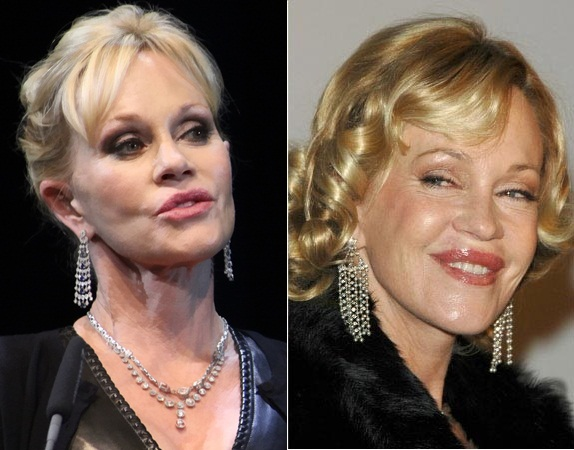 Melanie Griffith Plastic Surgery Gone Wrong Before and After Photos 1