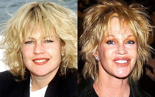 Melanie Griffith Plastic Surgery Gone Wrong Before and After Photos