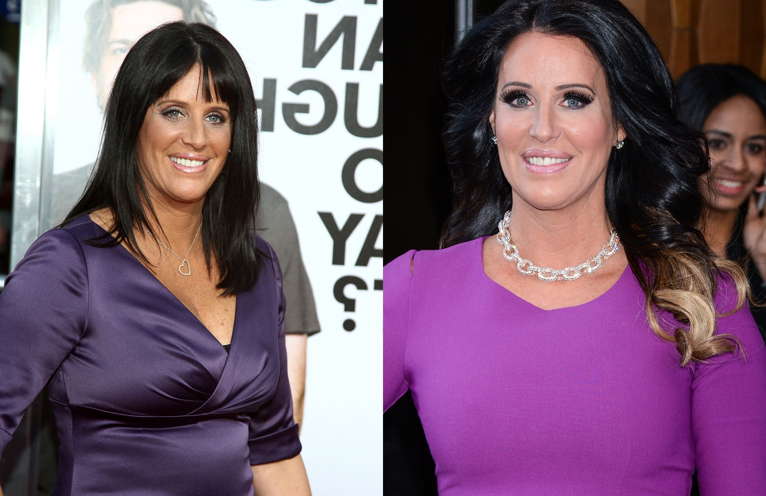 Patti Stanger Breast Reduction Surgery Before and After Boob Job Photos 1
