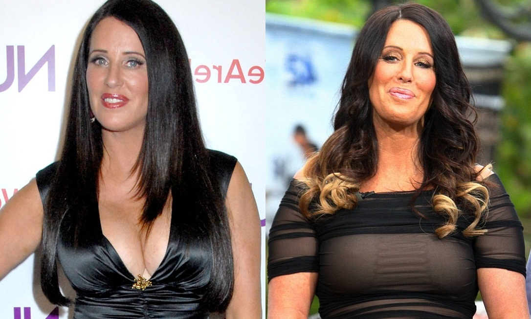 Patti Stanger Breasts Reduction Surgery Before And After Boob Job Photos 1