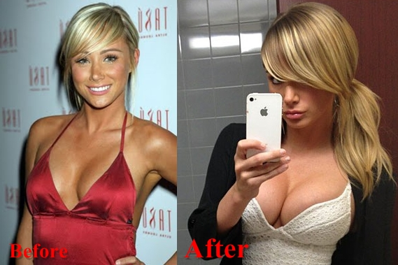 Sara Jean Underwood breast implants surgery before and after boobs job photos