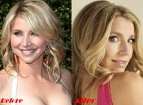 Sarah Chalke plastic surgery before and after nose job photos