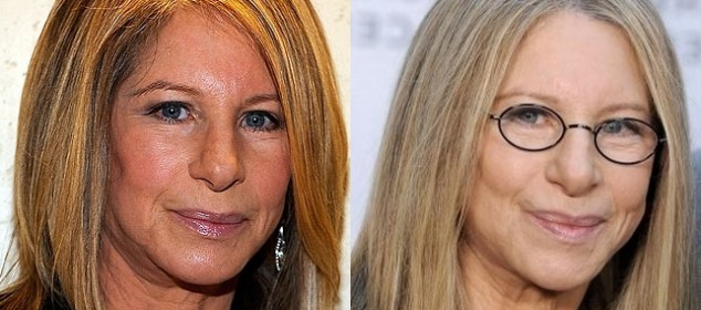 barbra streisand plastic surgery before and after photos 1