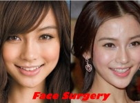 Angelababy plastic surgery before and after pictures 1