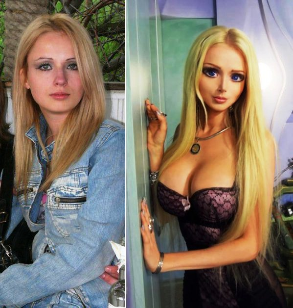 Barbie Plastic Surgery Girl Before And After Pictures 2