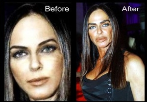 Celebrity Plastic Surgery Gone Wrong Before And After Photos  2