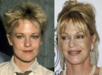 Celebrity plastic surgery gone wrong before and after photos 1