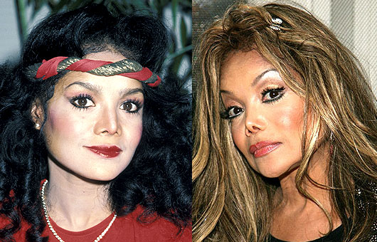Celebrity plastic surgery gone wrong before and after photos 3