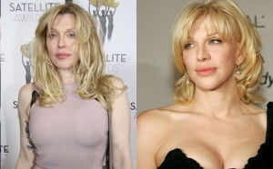 celebrity cosmetic surgery before and after photos